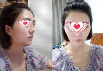 北京丽星整形全脸自体脂肪填充案例 现在我拍照起来超有镜头感