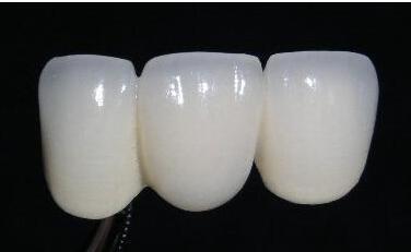 烤瓷牙会不会影响原有的咀嚼功能呢
