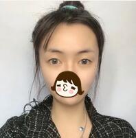 內江百齡京菊整形薛明醫生全切雙眼皮案例 顏值秒上升