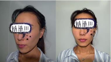 北京麗星整形自體脂肪填充全臉案例 術后顏值提升了真好看