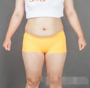 暨南大學附屬醫院做腰腹部吸脂案例 啦啦啦!術后曬我的小蠻腰了