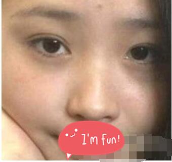 北京華韓整形黃旭培雙眼皮案例 術后恢復效果很自然異性朋友多了