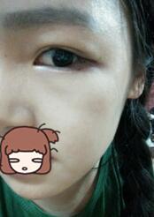 安徽韓美整形雙眼皮+上瞼下垂矯正案例 看看我做完幾天的眼睛
