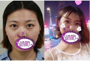青岛华韩整形武伟亮医生脂肪填充太阳穴案例 术后三个月变美了