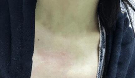 衡阳中心医院整形激光去疤案例