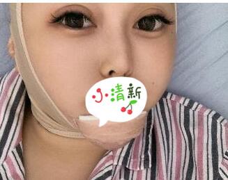 秦皇島一院整形毒素瘦臉案例 術后2各月精致小臉開始上線了