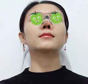 重慶光博士整形鼻綜合案例 現在的鼻子跟我的臉完全勾搭上了