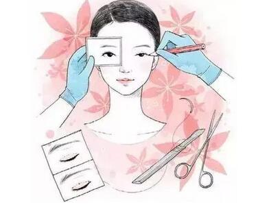 双眼皮整形后出现疤痕增生是否意味着手术失败?