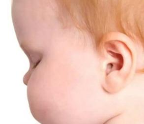 为什么你的小孩会出现招风耳、副耳、隐耳,甚至无耳的情况?