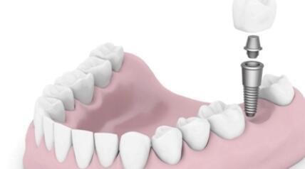 种植牙的使用寿命是多少年?