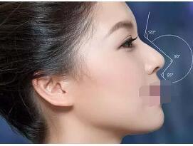 五月关注:夏季做隆鼻手术也不会容易感染