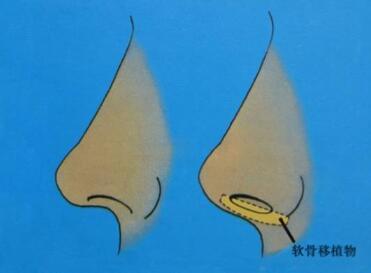 对自己的鼻子还满意吗?我们可以开启隆鼻逆袭之路了