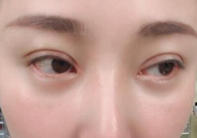 濟南美康整形雙眼皮+開眼角案例 眼睛變大了,期待后期更好的效果