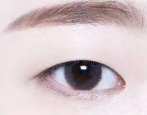 明明只是想割个双眼皮,医生为啥还要我开眼角?