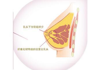 五月关注:乳房凹陷矫正手术治疗方法曝光