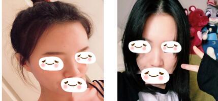 南陽華美整形王培生醫生肋軟骨隆鼻案例 這樣看我的臉型更立體了