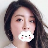 岳陽亞美整形陳兵醫生鼻綜合案例 看看我的鼻子是不是很有型呢
