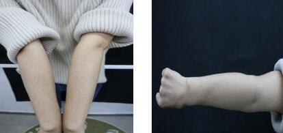 齐齐哈尔玛丽亚整形王金红医生手臂激光脱毛案例