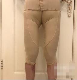 杭州時光整形吸脂瘦大腿案例 現在可以凹造型隨意拍了
