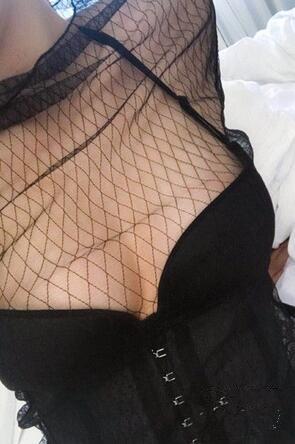 北京美莱整形自体脂肪隆胸案例
