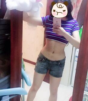 重庆艺星整形腰腹吸脂案例