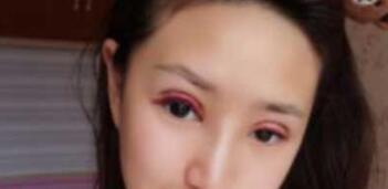 河南整形鲁华医生全切双眼皮手术案例