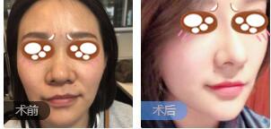 郑州东方女子医院整形吴振医生鼻综合整形案例 术后鼻子真的精致