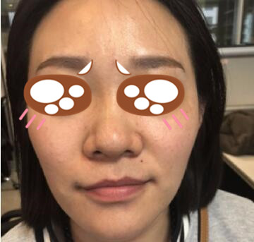 郑州东方女子医院整形吴振医生鼻综合整形案例