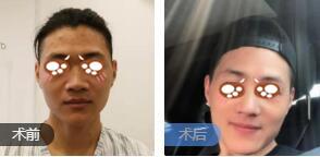 鄭州東方女子醫院整形吳振醫生鼻綜合整形案例 術后效果棒棒的