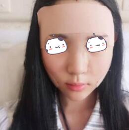重庆超雅整形彭伟医生自体脂肪面部填充案例 皮肤状态真的非常好