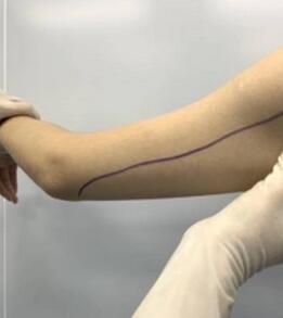 重庆星宸整形晏传涛医生吸脂瘦手臂案例 皮肤很紧致、有弹性