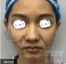 杭州格莱美整形面部吸脂案例 哈哈,被自己惊艳到了