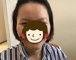 深圳联合丽格整形发际线种植案例 感觉整张脸看上去更加精致一些