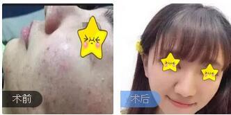 广州佳人整形曹萍医生点阵激光祛痘案例 术后4个月皮肤光滑上线