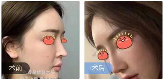 深圳丽港丽格整形谢俊医生肋软骨鼻综合修复案例 术后鼻子很自然