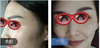 北京中关村整形苏明山医生激光祛斑案例 术后皮肤保持白净状态耶