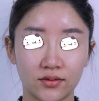 徐州矿务总医院整形鼻综合案例 朋友帮我拍的侧脸照好看吧