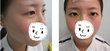 昆明同仁整形杨维琦医生切开双眼皮案例 这就是我满意的眼睛状态