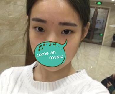 邯郸中心医院整形双眼皮案例 术后2个月晒芭比大眼 引来好多异性