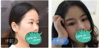 广州飞悦整形刘跃飞医生鼻部综合术案例 术后3个月鼻子给脸型加分