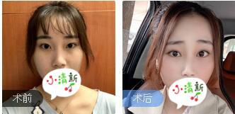 广州飞悦整形班安华鼻部综合整形案例 术后60天美鼻很自然上线了