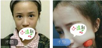 廣州晨曦整形廖軼平醫生硅膠假體隆鼻案例 術后60天鼻子恢復很好