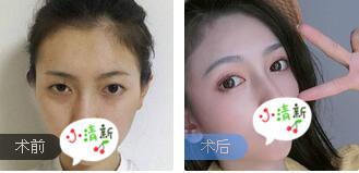 廣州晨曦整形廖軼平醫生全切雙眼皮案例 術后65天眼睛很自然有神