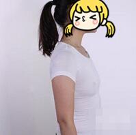 長沙亞韓整形假體隆胸案例 纖瘦的身材,也能擁有如此大的胸呢