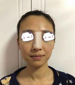重慶聯合麗格整形鼻綜合案例 你們已經跟不上美麗的腳步啦�。�!
