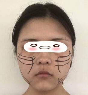 廣州積美整形陳藝醫生埋線提升案例 看起來超級的減齡