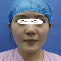 东莞韩美整形自体脂肪填充全脸案例 目前我的面部状态挺稳定的
