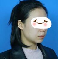 赣州韩美整形玻尿酸垫下巴案例 下巴明显的变尖了,脸也变瘦了