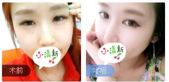 深圳丽港丽格整形谢俊医生鼻部综合术案例 术后半年鼻子很自然