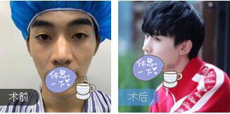 广州星团整形赵辉医生鼻部综合术案例 术后50天鼻子变得很挺自然